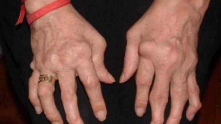 Artrit Nedir, Nelere Dikkat Etmeliyiz